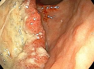 胃がんの写真